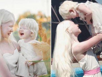 Красивые альбиносы